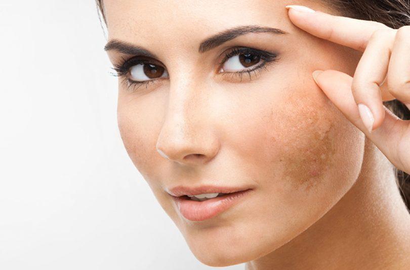 Mulher com melasma no rosto