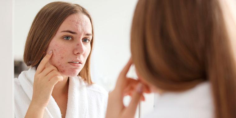 tratamento_para_acne_dermatologista_cesar_bimbi