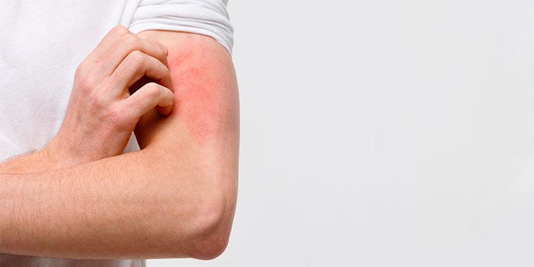 A sarna é uma doença altamente contagiosa, afetando 300 milhões de pessoas a cada ano no mundo.