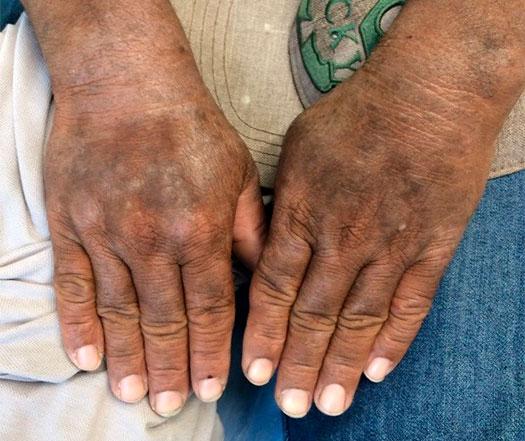 Dermatite-hiperceratotica-e-liquenificada