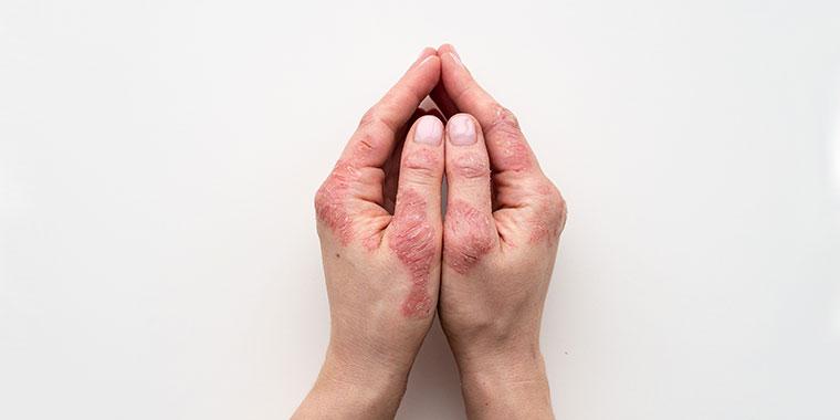 dermatite-de-mãos-dr-césar-bimbi-porto-alegre