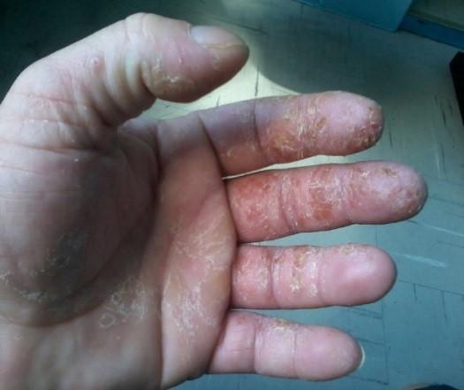 dermatite irritativa em servente de obras