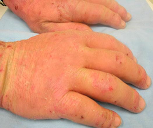 dermatite-por-látex-das-luvas