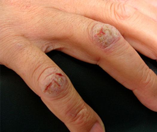 ulceração-nas-mãos
