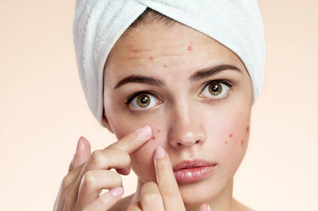 Mulher branca com toalha na cabeça espremendo acne no rosto sobre fundo bege